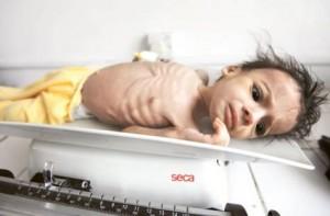 US warns of 'overlooked' food crisis in Yemen