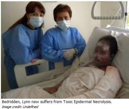 Woman in Dubai suffers 90% burns after taking antibiotic
