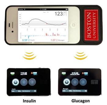 "Progress made on ""bionic pancreas"" for diabetics"