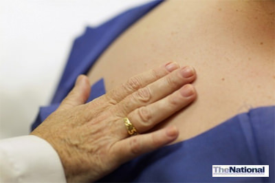 Westerners in the UAE not heeding sun-safe advice, doctors say