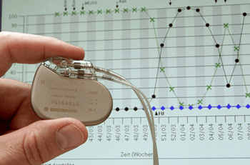 A safe, reliable wireless pacemaker to hit stores soon
