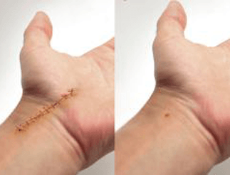 Carpal Tunnel Syndrome can be cured within an hour