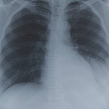 Expat asked to leave UAE due to old TB scars
