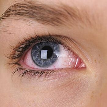 Dubai Hospital holds 'dry eye' awareness campaign