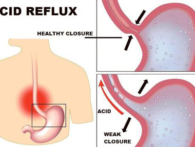 30% of UAE population suffers from acid reflux