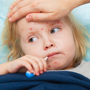 Nationwide campaign against measles to be launched