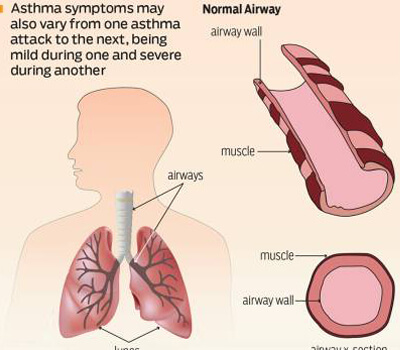 1 in 6 UAE Residents Suffers from Asthma