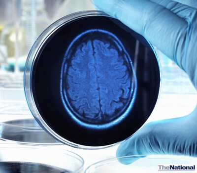 Ageing populations herald increase in Alzheimer's disease