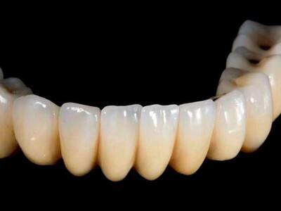 Dubai's first 3D-printed teeth look more natural than real