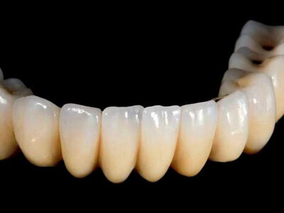 Dubai's first 3D-printed teeth look more natural than real